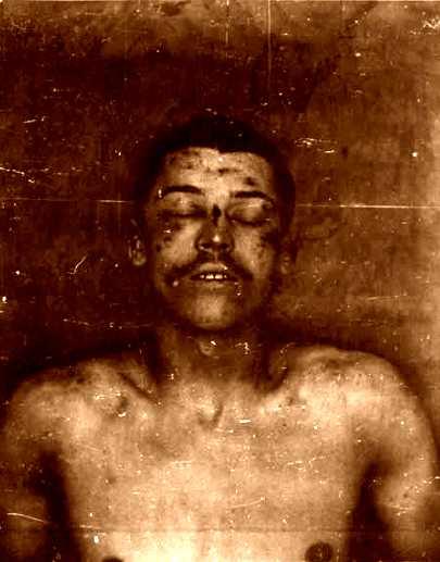 El cos d'Octave Garnier a la morgue